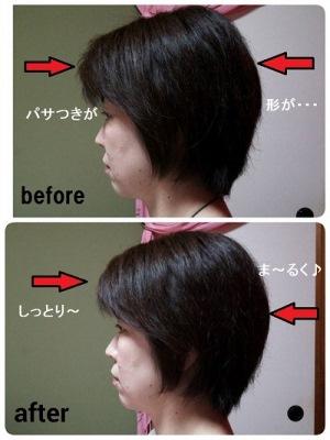 頭皮セルフケア症例