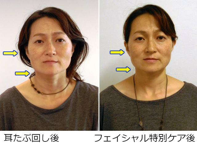 facial-tokubetsu1