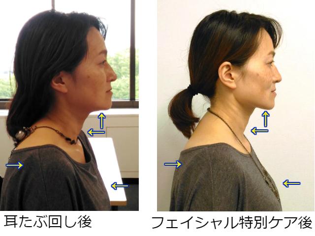 facial-tokubetsu2